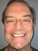 Dentist In Spring Tx Smile Gallery